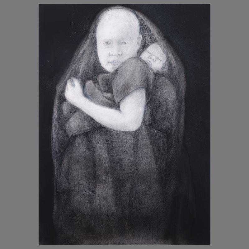 07-Albino-Nigeria